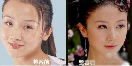 孙菲菲整容前后对比-娱乐圈被整容女星 变脸 细节揭秘图片